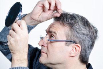 Hà thủ ô giải pháp tự nhiên cho chứng bạc tóc sớm