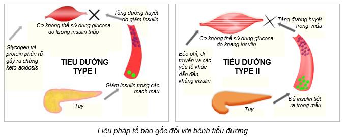 Bệnh tiểu đường 1